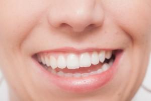 歯についた食べかすが取れない!取り方は?歯医者に行くべきか?